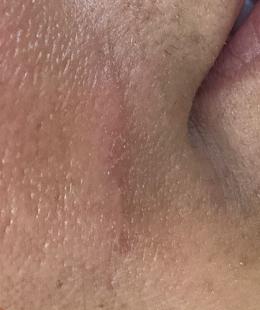 cicatriz2